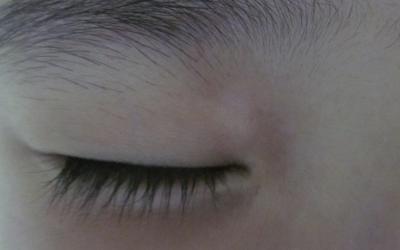 眼角轻微白癜风怎么治疗好