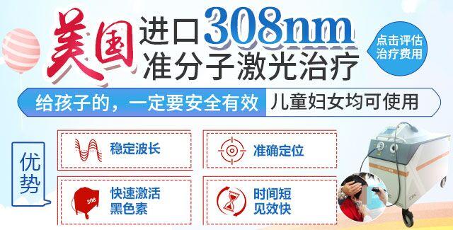 308准分子激光治疗白癜风对皮肤有伤害吗