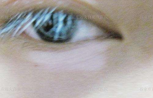 白癜风患者的睫毛变白了要紧吗