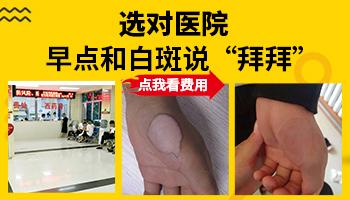 中国看白癜风最权威的医院排名