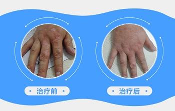 手上的白斑植皮后的图片