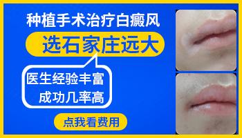 手部白癜风皮肤移植哪里成功率高