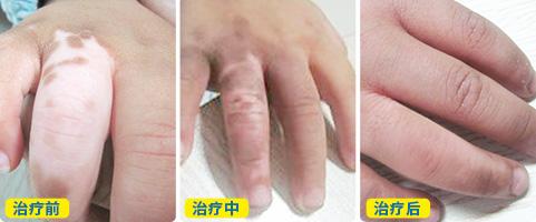 手背淡白色白斑不痛不痒是什么