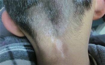 儿童脖子上有块皮肤变白了怎么回事
