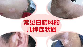 嘴唇白癜风初期症状图片