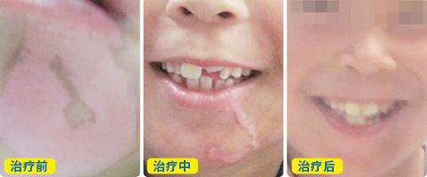 嘴周围的皮肤有点变白怎么回事