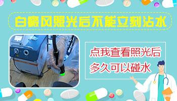 uvb灯治疗脸部白癜风能立即洗脸吗