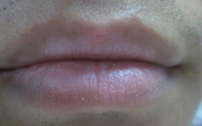 嘴唇突然白了一小块是什么原因