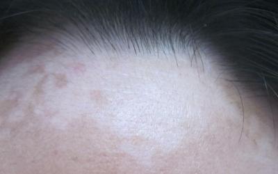 额头发际线位置的皮肤有些泛白是什么原因