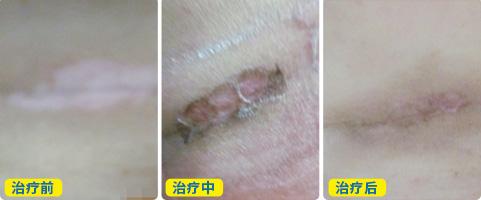 白癜风皮肤移植后的恢复图
