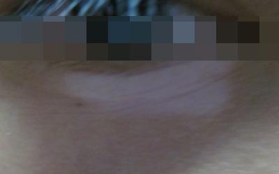 两个眼睛下眼睑白斑是什么