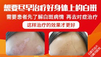 身上白斑外用涂抹药膏发现有扩散的征兆