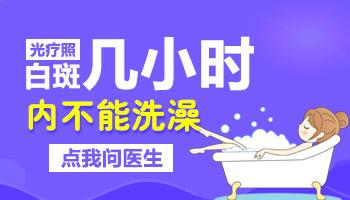 白癜风做完紫外线光疗能碰水吗