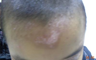两个月宝宝额头处有一点白色的斑点