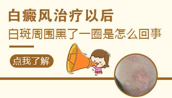 <a href=https://www.zhjianfa.com/zhiliao/ target=_blank class=infotextkey>白癜风治疗</a>后比正常肤色黑