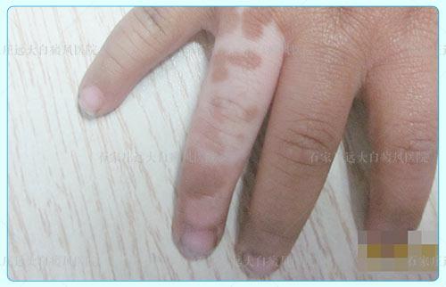 白癜风手指缝里会有吗