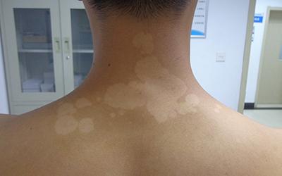 后背有不明显白斑是什么病
