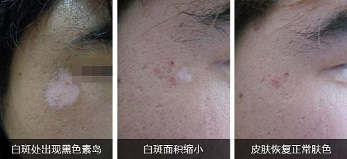 白斑治疗恢复的过程是什么样子的