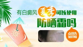 适合白癜风患者用的防晒霜是哪种