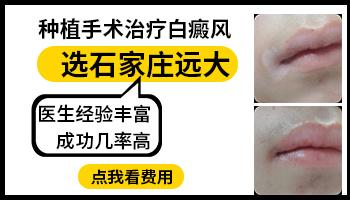 嘴上有一点白癜风能不能做植皮手术