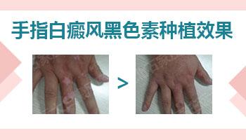 白癜风植皮手术后两周图片