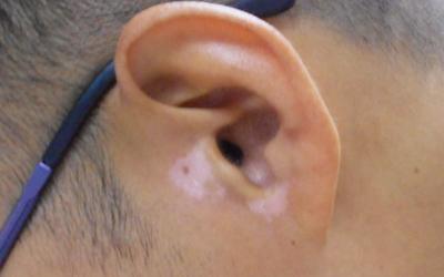 耳朵下边有几个白点是不是白癜风