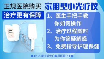 家用照光仪能治白癜风吗