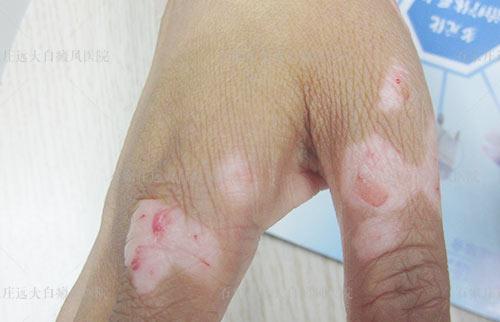 伤口愈合后出现了白斑怎么回事