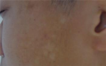 脸上有淡淡的白斑是身体里缺什么维生素