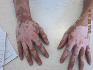 米粒大白斑在手背上图片