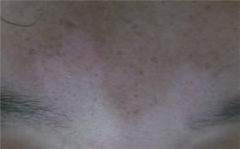眉毛边白癜风是怎样的症状