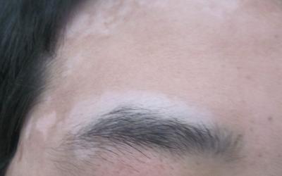 眉毛上方一块皮肤白了是怎么了