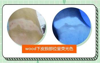 伍德灯如何区别外伤后白斑和白癜风
