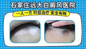 面膜会引起白癜风吗 长白斑怎么治
