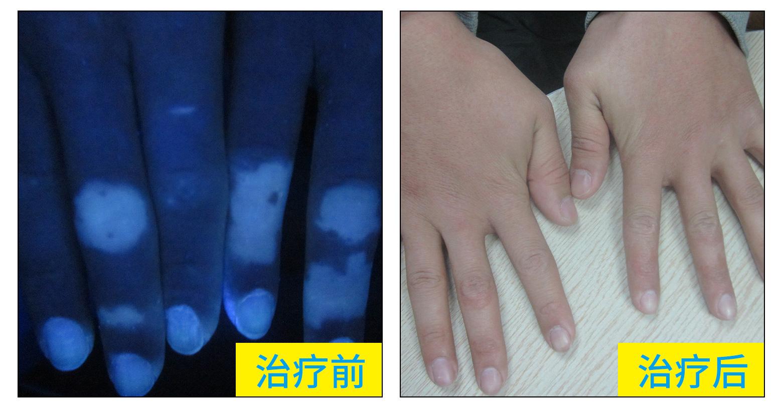 右手手指关节出现白斑图片