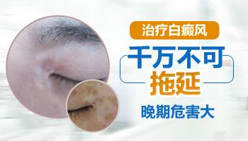 嘴唇周围长白斑不及时治疗会怎么样